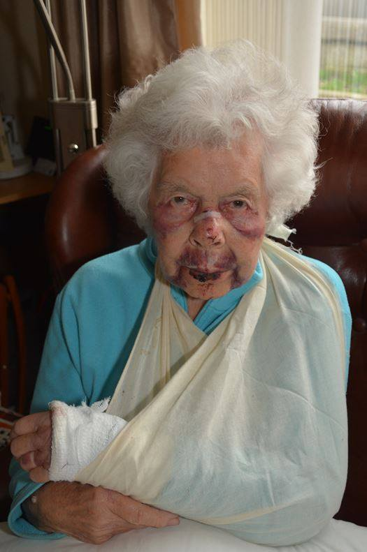 INJURED: The 88-year-old, pictured,  sustained a number of injuries in the incident
